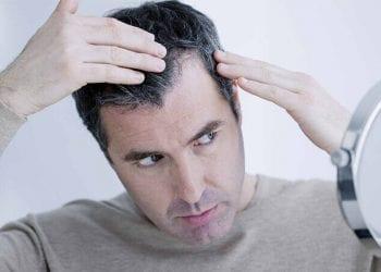 Učestalost gubitka kose kod muškaraca i žena