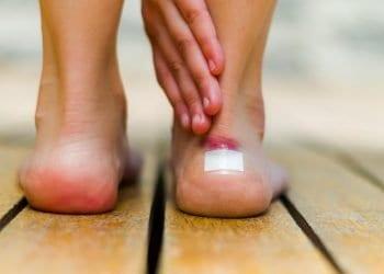 Problem koji je čest kod mnogih Žuljevi na stopalima