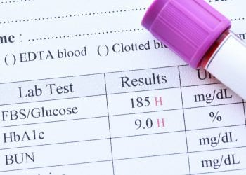 HbA1c - test ima važnu ulogu u kontroli dijabetesa