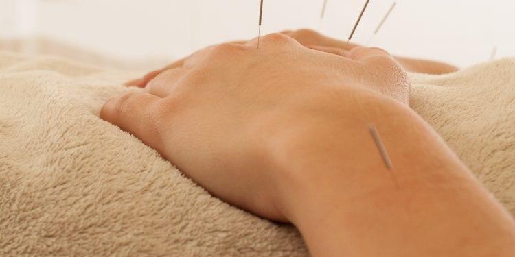 Akupunktura uzrokuje gubitak kilograma jer stimulira hormon koji potiskuje apetit