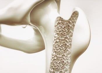 Osteoporozu treba spriječiti na vrijeme