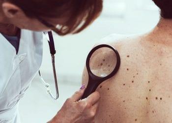 Ovo su mogući znakovi tumora koje ne biste smjeli ignorisati