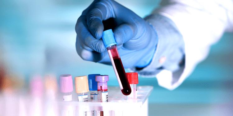Činjenice o ljudskoj krvi koje sigurno niste znali