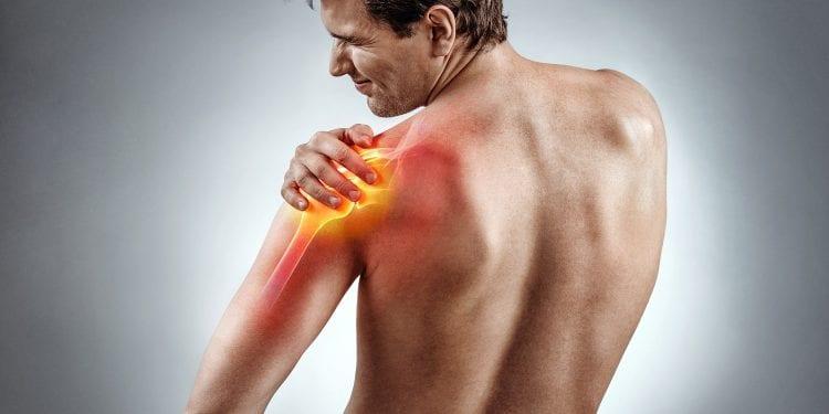 Bolna stanja - Kalcificirajući tendinitis ramena