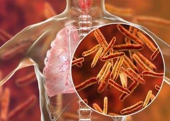 Koji su uzroci tuberkuloze i kako se manifestuje?