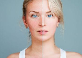 Šta trebamo raditi kad nam je lice konstantno crveno?