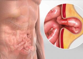 Bruh, kila, hernija - operativnim zahvatom se možete riješiti muke