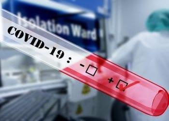 Serološko testiranje na COVID-19 - IgM i IgG antitijela